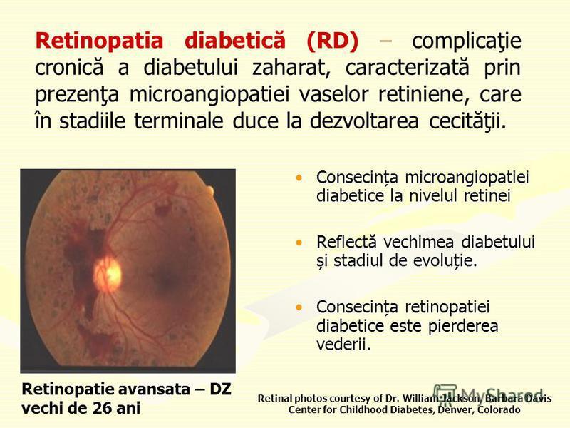 Retinopatia diabetică (RD) – complicaţie cronică a diabetului zaharat, caracterizată prin prezenţa microangiopatiei vaselor retiniene, care în stadiile terminale duce la dezvoltarea cecităţii. Consecința microangiopatiei diabetice la nivelul retineiC