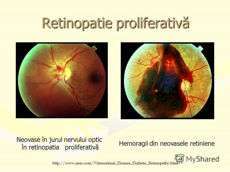 Retinopatie proliferativă Neovase în jurul nervului optic în retinopatia proliferativă Hemoragii din neovasele retiniene http://www.neec.com/Vitreoretinal_Disease_Diabetic_Retinopathy.html