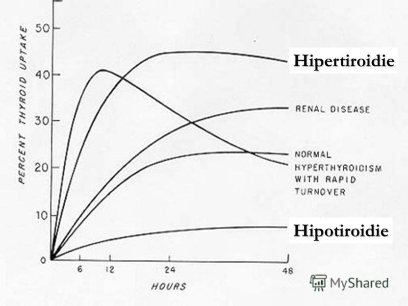Hipertiroidie Hipotiroidie