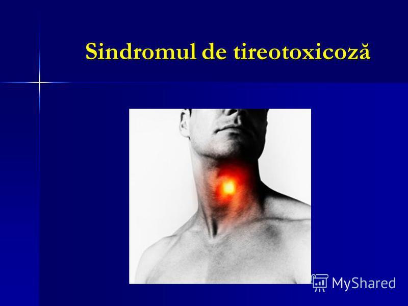 Sindromul de tireotoxicoză
