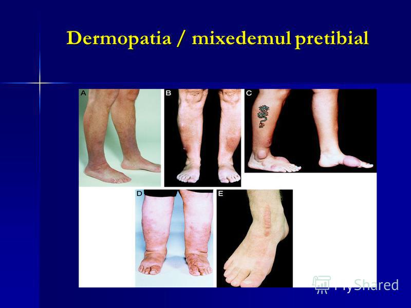 Dermopatia / mixedemul pretibial