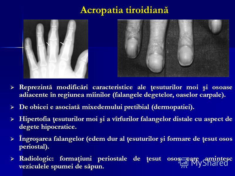 Acropatia tiroidiană Reprezintă modificări caracteristice ale ţesuturilor moi şi osoase adiacente în regiunea mîinilor (falangele degetelor, oaselor carpale). Reprezintă modificări caracteristice ale ţesuturilor moi şi osoase adiacente în regiunea mî