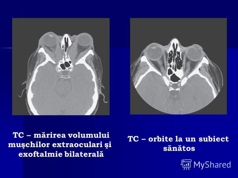 TC – mărirea volumului muşchilor extraoculari şi exoftalmie bilaterală TC – orbite la un subiect sănătos