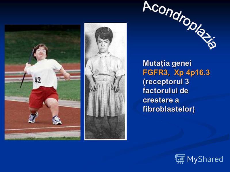 Mutaţia genei FGFR3, Хр 4p16.3 (receptorul 3 factorului de crestere a fibroblastelor)