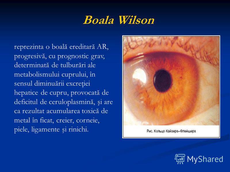 Boala Wilson reprezinta o boală ereditară AR, progresivă, cu prognostic grav, determinată de tulburări ale metabolismului cuprului, în sensul diminuării excreţiei hepatice de cupru, provocată de deficitul de ceruloplasmină, şi are ca rezultat acumula