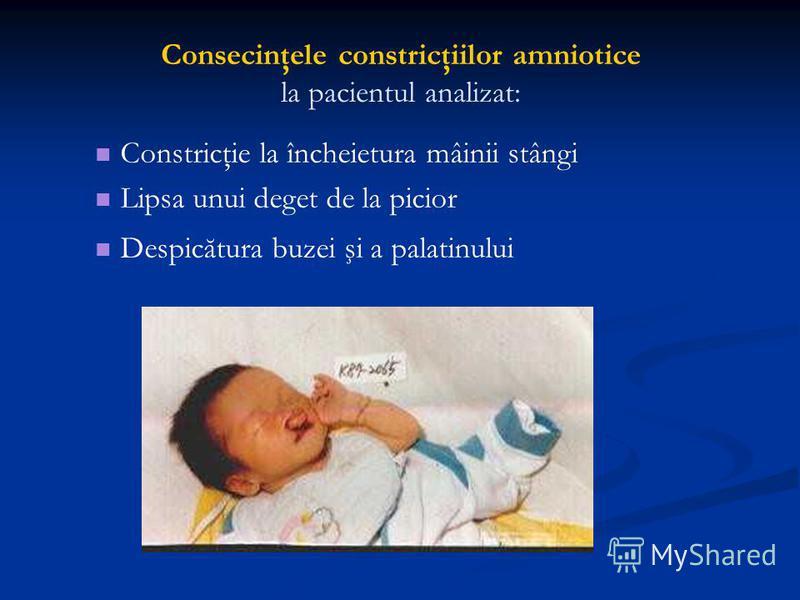 Consecinţele constricţiilor amniotice la pacientul analizat: Constricţie la încheietura mâinii stângi Lipsa unui deget de la picior Despicătura buzei şi a palatinului
