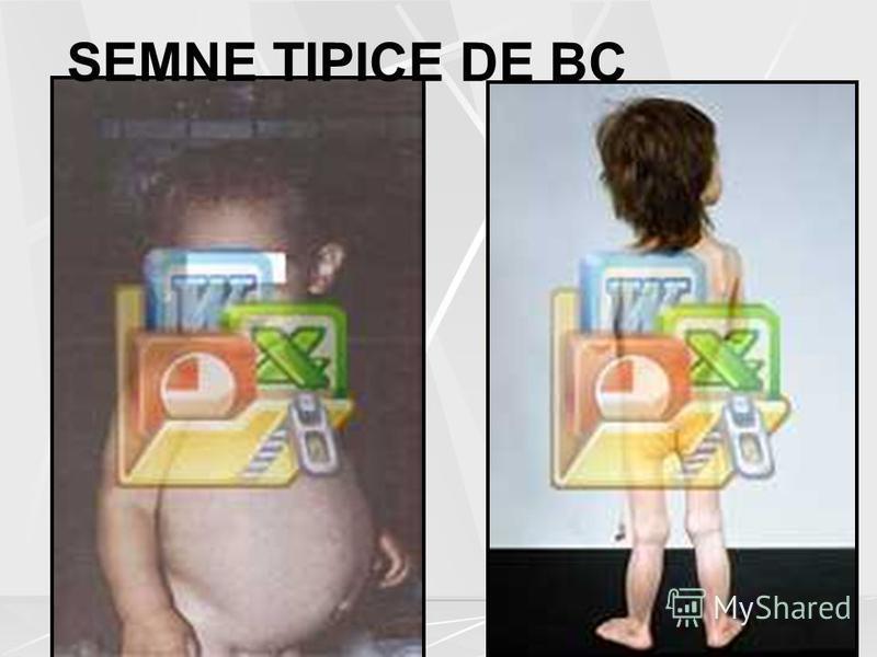 SEMNE TIPICE DE BC