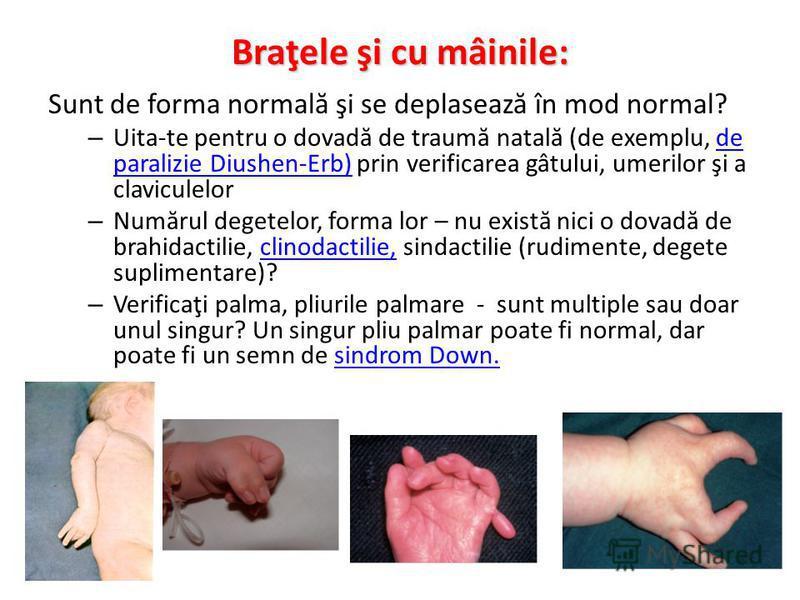 Braţele şi cu mâinile: Sunt de forma normal ă şi se deplaseaz ă în mod normal? – Uita-te pentru o dovad ă de traum ă natal ă (de exemplu, de paralizie Diushen-Erb) prin verificarea gâtului, umerilor şi a claviculelorde paralizie Diushen-Erb) – Num ă