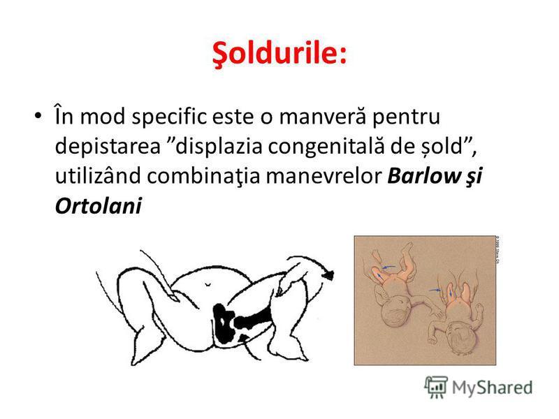 Şoldurile: În mod specific este o manver ă pentru depistarea displazia congenital ă de șold, utilizând combinaţia manevrelor Barlow şi Ortolani