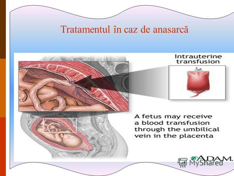 În caz de anasarcă – exanguinotransfuzie antenatală Tratamentul în caz de anasarcă