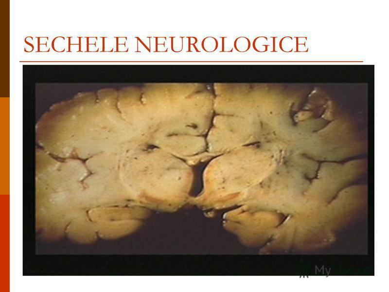 SECHELE NEUROLOGICE