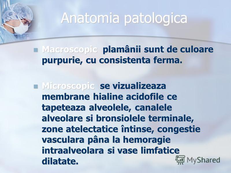 Anatomia patologica Macroscopic plamânii sunt de culoare purpurie, cu consistenta ferma. Macroscopic plamânii sunt de culoare purpurie, cu consistenta ferma. Microscopic se vizualizeaza membrane hialine acidofile ce tapeteaza alveolele, canalele alve