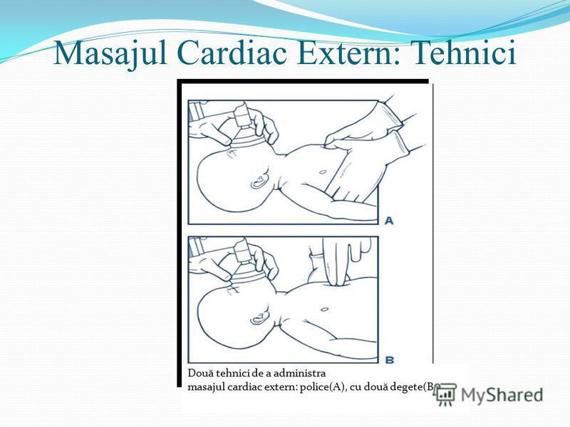 Masajul Cardiac Extern: Tehnici Două tehnici de a administra masajul cardiac extern: police(A), cu două degete(B