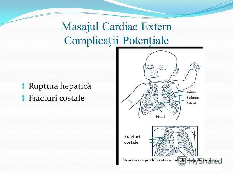 Masajul Cardiac Extern Complicaii Poteniale ! Ruptura hepatic ă ! Fracturi costale Ficat Inima Pulmon Xifoid Fracturi costale Structuri ce pot fi lezate în cursul masajului cardiac