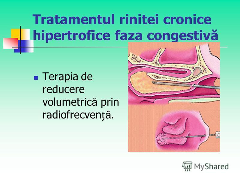 Tratamentul rinitei cronice hipertrofice faza congestivă Terapia de reducere volumetric ă prin radiofrecven ă.
