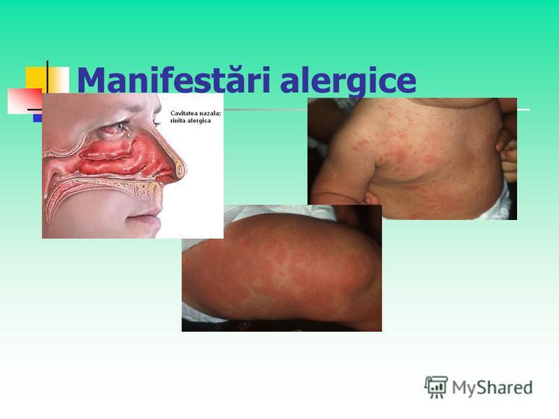 Manifestări alergice