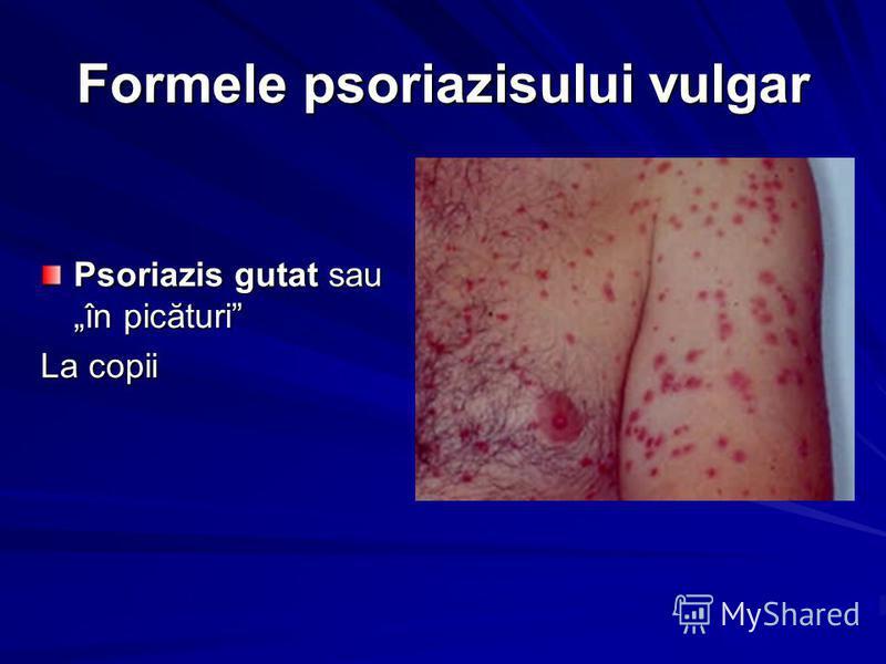 Formele psoriazisului vulgar Psoriazis gutat sau în picături La copii