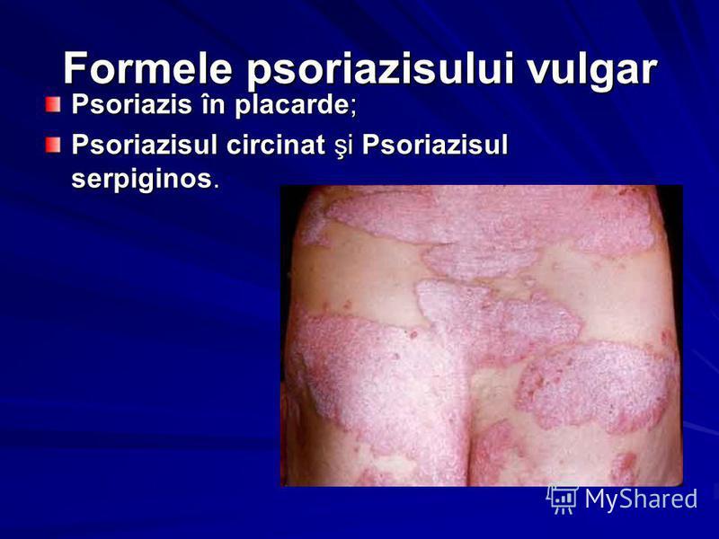 Formele psoriazisului vulgar Psoriazis în placarde; Psoriazisul circinat şi Psoriazisul serpiginos.