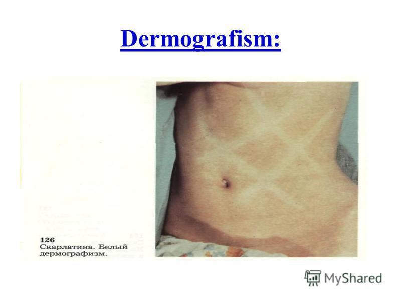 Dermografism: