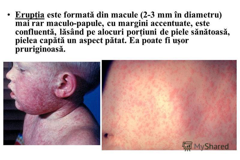 Erupţia este formată din macule (2-3 mm în diametru) mai rar maculo-papule, cu margini accentuate, este confluentă, lăsând pe alocuri porţiuni de piele sănătoasă, pielea capătă un aspect pătat. Ea poate fi uşor pruriginoasă.
