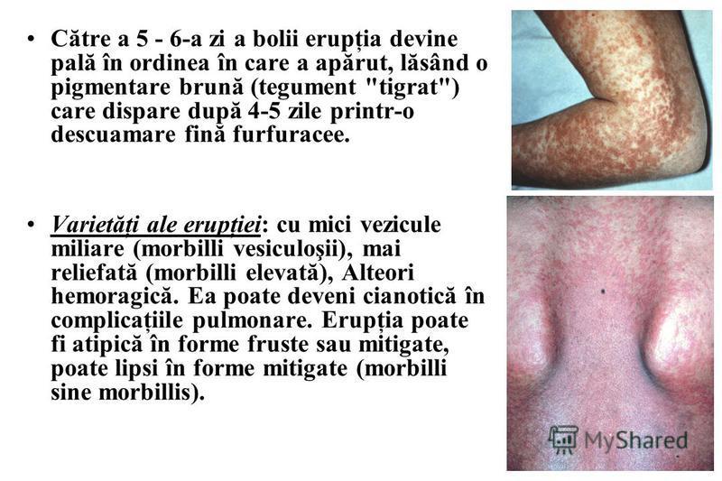 Către a 5 - 6-a zi a bolii erupţia devine pală în ordinea în care a apărut, lăsând o pigmentare brună (tegument