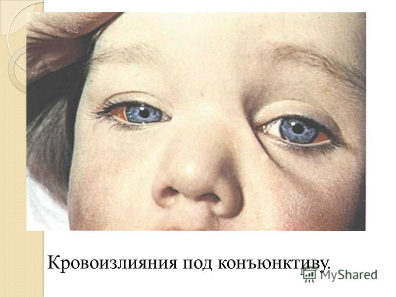 Кровоизлияния под конъюнктиву.