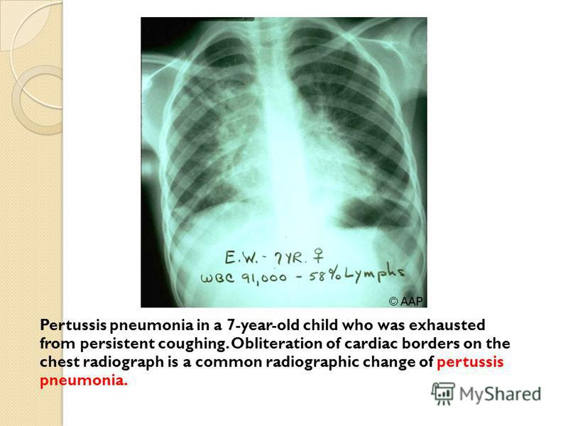 Pertussis pneumonia in a 7-year-old child who was exhausted from persistent coughing. Obliteration of cardiac borders on the chest radiograph is a common radiographic change of pertussis pneumonia.