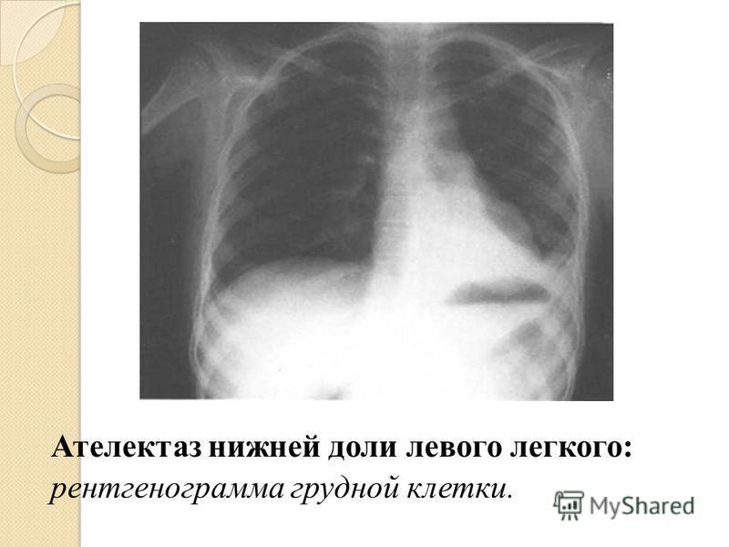 Ателектаз нижней доли левого легкого: рентгенограмма грудной клетки.