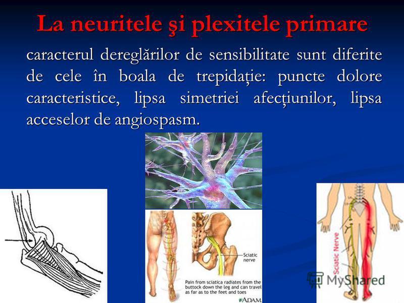 La neuritele şi plexitele primare caracterul dereglărilor de sensibilitate sunt diferite de cele în boala de trepidaţie: puncte dolore caracteristice, lipsa simetriei afecţiunilor, lipsa acceselor de angiospasm.