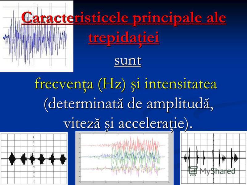 Caracteristicele principale ale trepidaţiei sunt sunt frecvenţa (Hz) şi intensitatea (determinată de amplitudă, viteză şi acceleraţie). frecvenţa (Hz) şi intensitatea (determinată de amplitudă, viteză şi acceleraţie).
