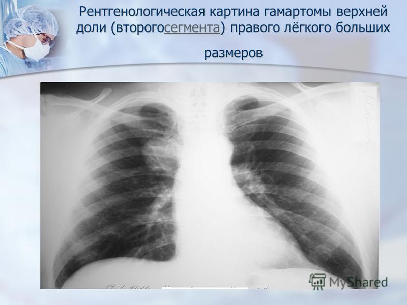 Рентгенологическая картина гамартомы верхней доли (второго сегмента) правого лёгкого больших размеров сегмента