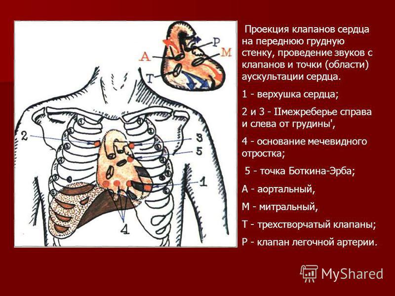 Проекция клапанов сердца на переднюю грудную стенку, проведение звуков с клапанов и точки (области) аускультации сердца. 1 - верхушка сердца; 2 и 3 - IIмежреберье справа и слева от грудины', 4 - основание мечевидного отростка; 5 - точка Боткина-Эрба;