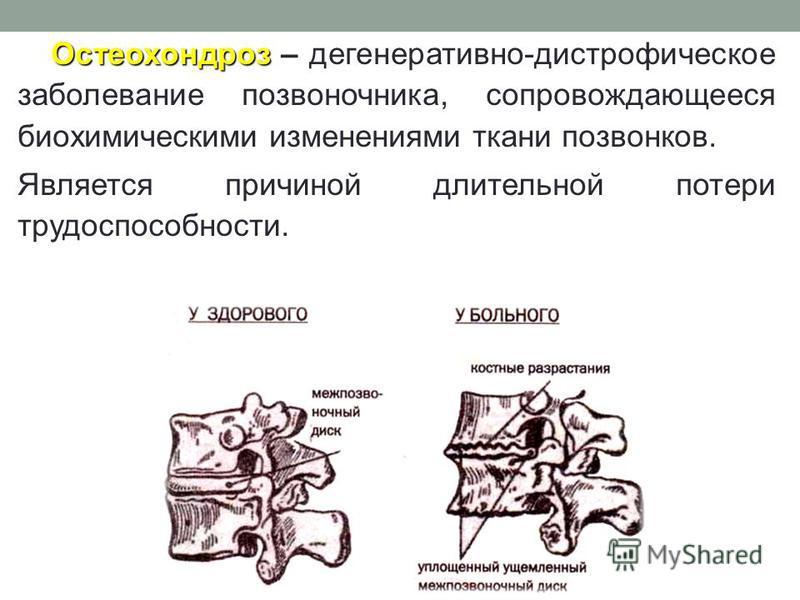 Остеохондроз Остеохондроз – дегенеративно-дистрофическое заболевание позвоночника, сопровождающееся биохимическими изменениями ткани позвонков. Является причиной длительной потери трудоспособности.