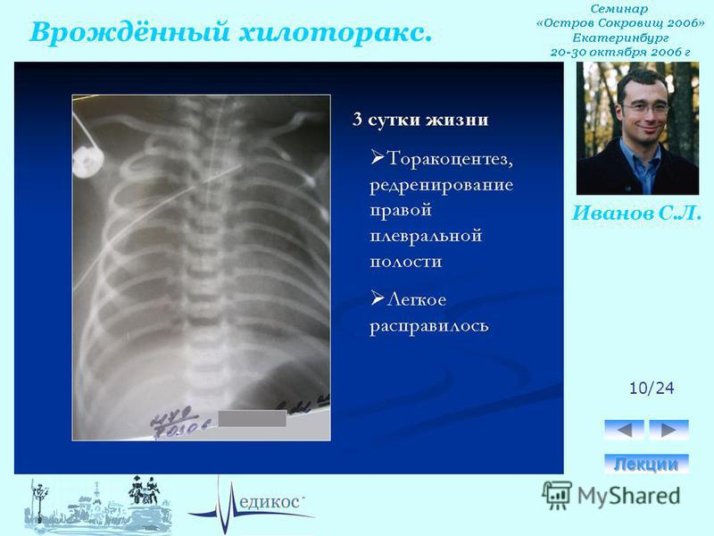 Врождённый хилоторакс. Иванов С.Л. 10/24