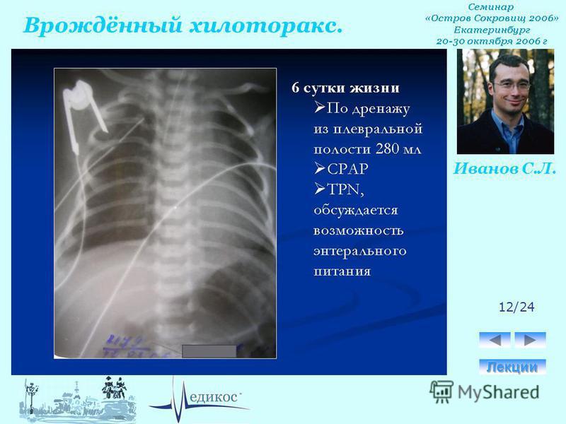 Врождённый хилоторакс. Иванов С.Л. 12/24