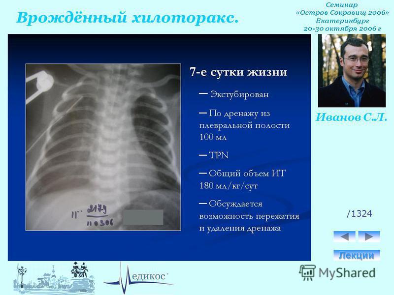 Врождённый хилоторакс. Иванов С.Л. /1324