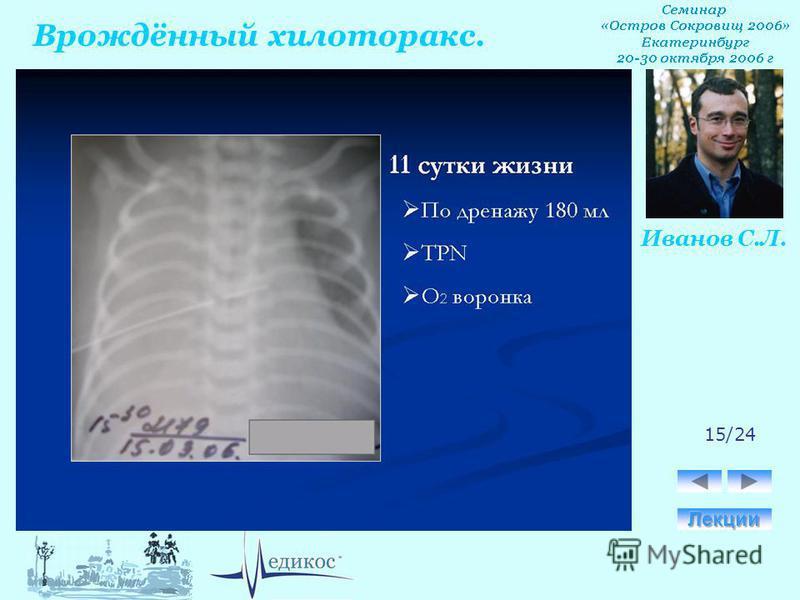 Врождённый хилоторакс. Иванов С.Л. 15/24