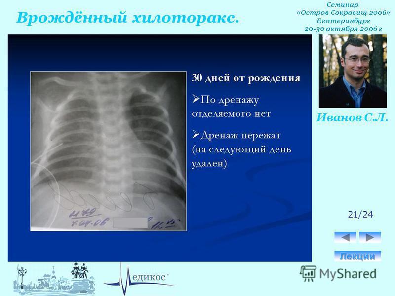 Врождённый хилоторакс. Иванов С.Л. 21/24