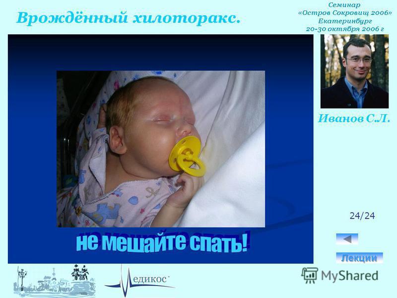 Врождённый хилоторакс. Иванов С.Л. 24/24