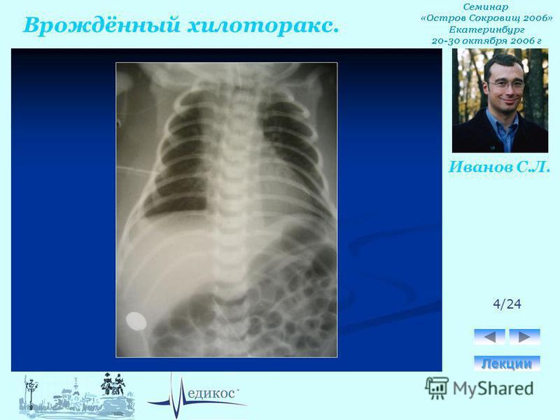 Врождённый хилоторакс. Иванов С.Л. 4/24