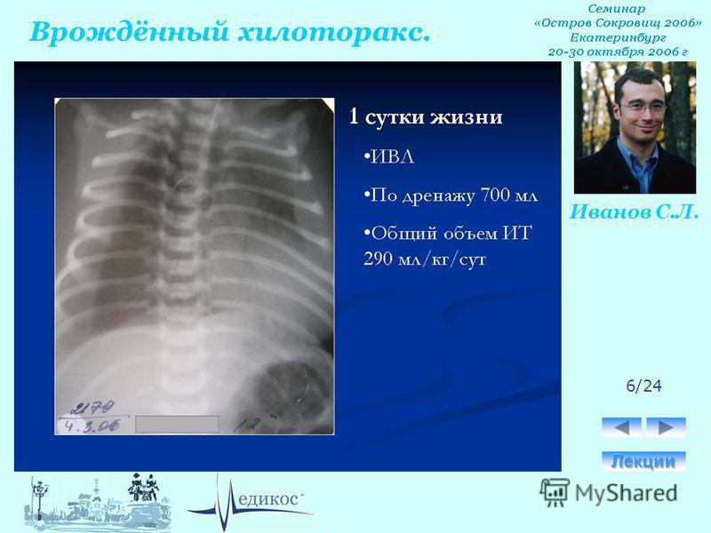Врождённый хилоторакс. Иванов С.Л. 6/24