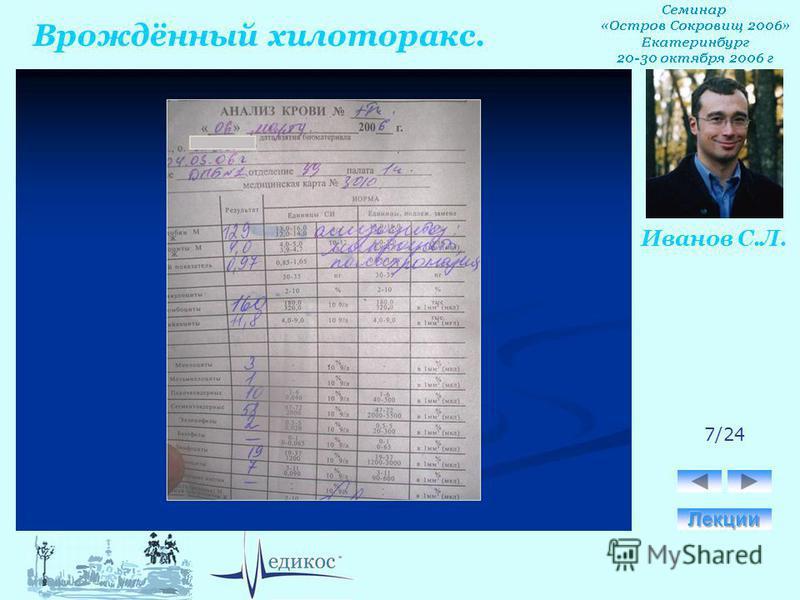 Врождённый хилоторакс. Иванов С.Л. 7/24