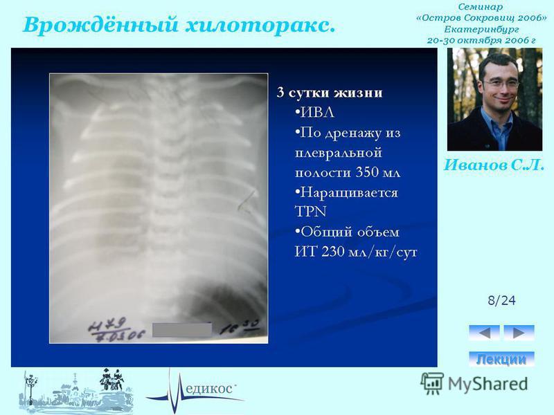 Врождённый хилоторакс. Иванов С.Л. 8/24