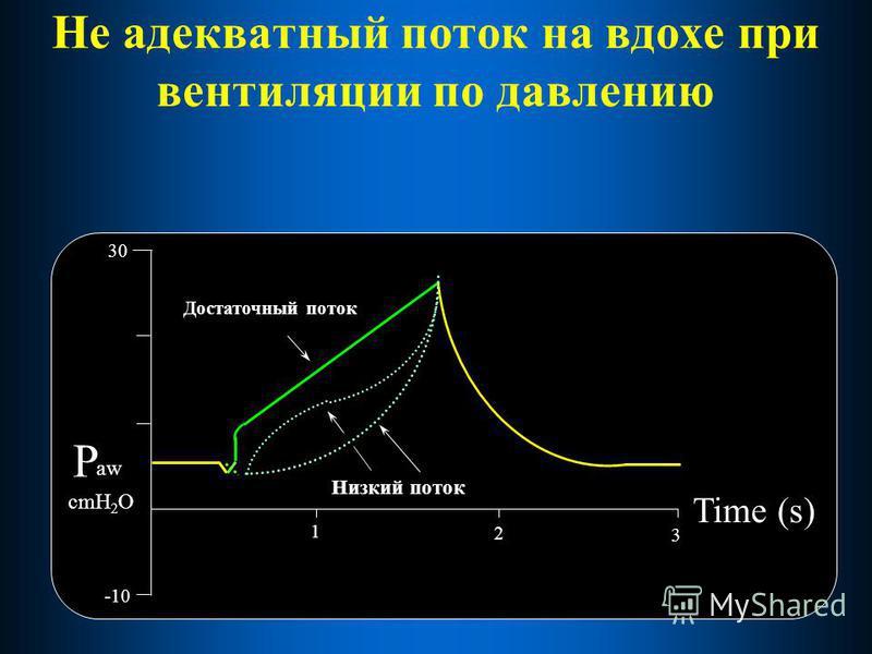 Не адекватный поток на вдохе при вентиляции по давлению 30 Time (s) -10 1 2 aw P cmH 2 O Достаточный поток Низкий поток 3