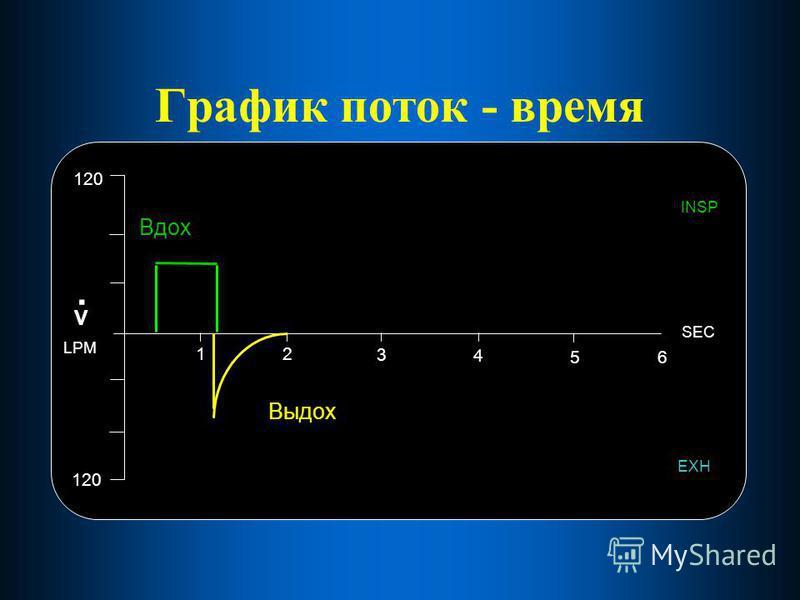 График поток - время 12 3 4 56 SEC 120 EXH INSP V. LPM Вдох Выдох
