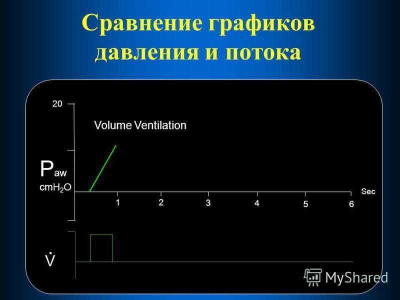 Сравнение графиков давления и потока 12 3 4 56 20 Sec P aw cmH 2 O V. Volume Ventilation