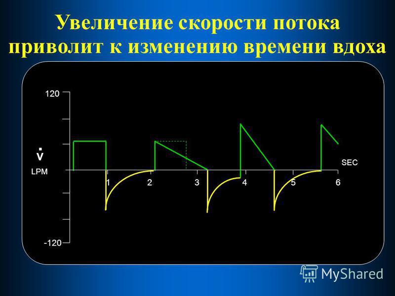 Увеличение скорости потока приводит к изменению времени вдоха 123456 SEC 120 -120 V. LPM