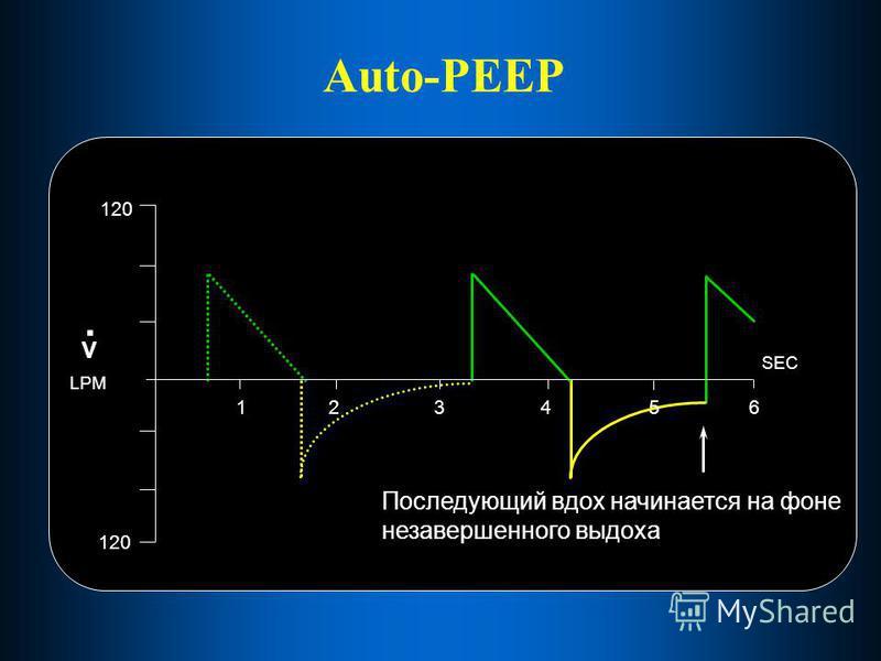 Auto-PEEP Последующий вдох начинается на фоне незавершенного выдоха 123456 SEC 120 V. LPM