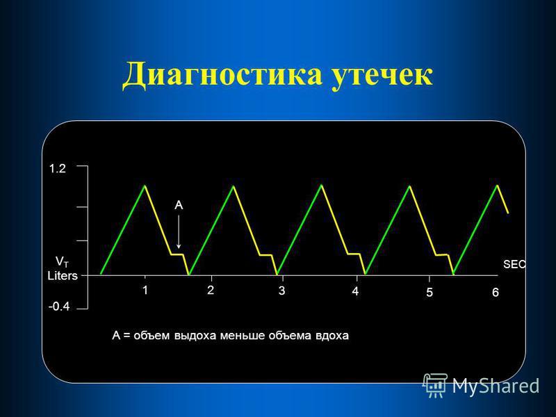 Диагностика утечек 12 3 4 56 SEC 1.2 -0.4 V T Liters A A = объем выдоха меньше объема вдоха