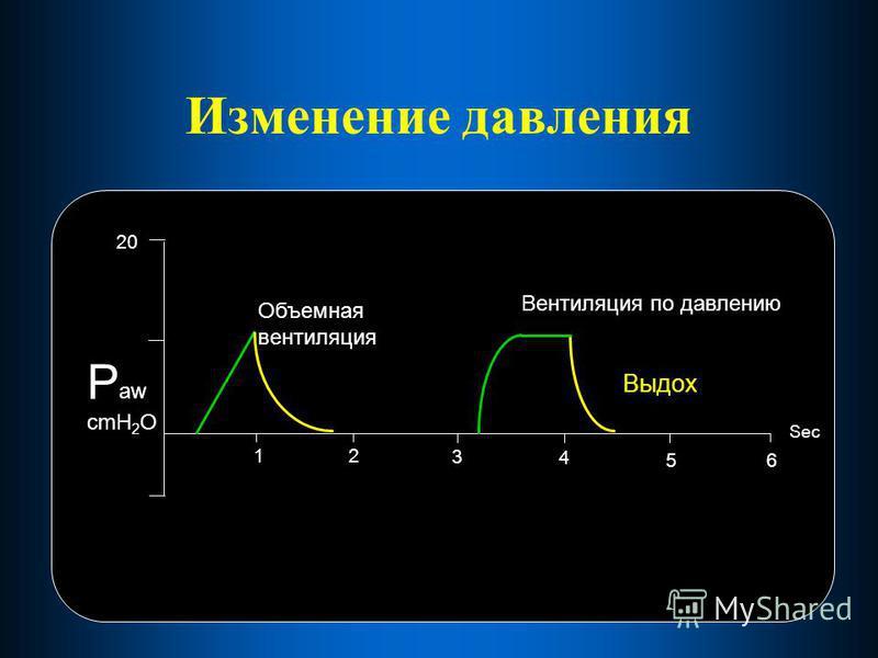 Изменение давления 12 3 4 56 20 Sec P aw cmH 2 O Вентиляция по давлению Выдох Объемная вентиляция